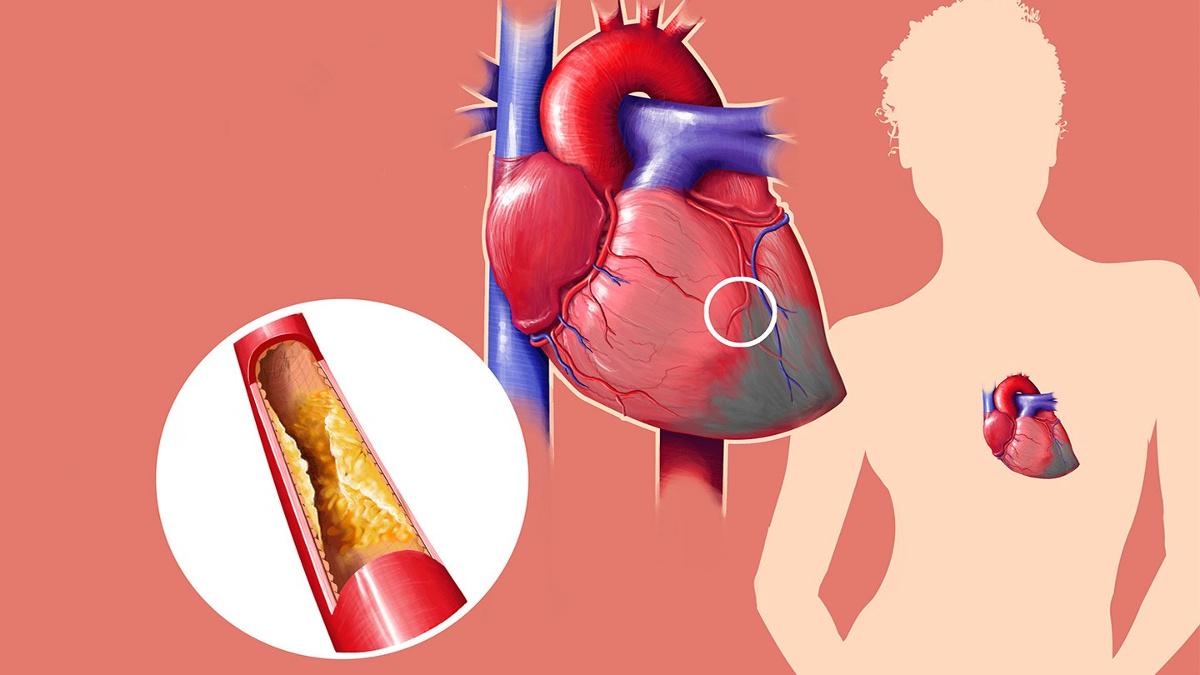 controllo-colesterolo-alghero