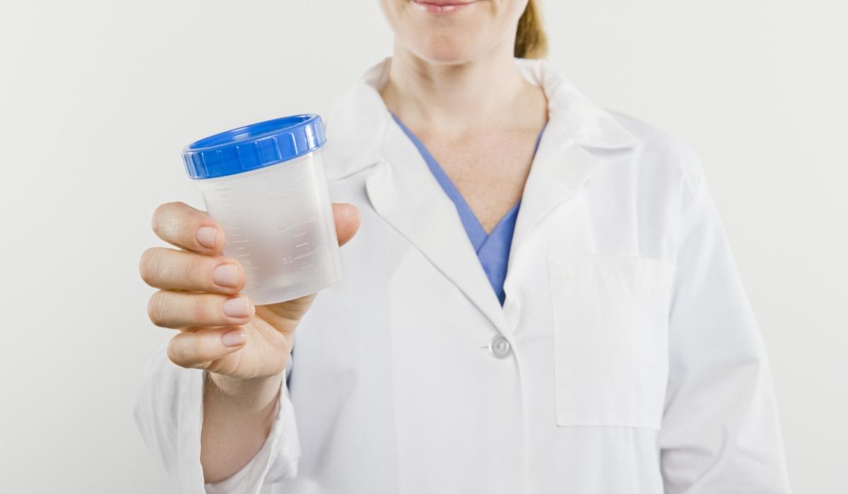 esame-urine-alghero